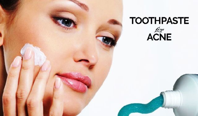 Toothpaste For Acne