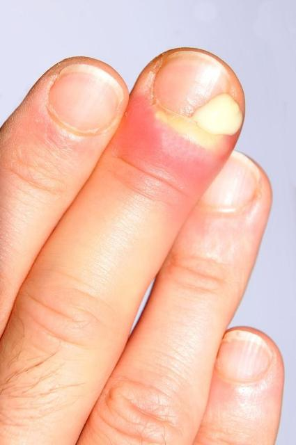 Do Not Play With Hangnails For Healthy Nails