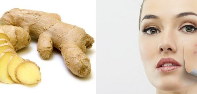 Ginger Tea Treats Pimples