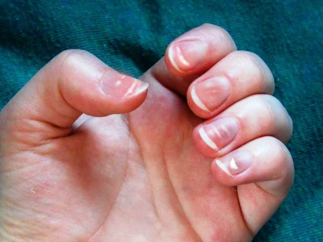 Home Remedies To Treat White Spots On Nails