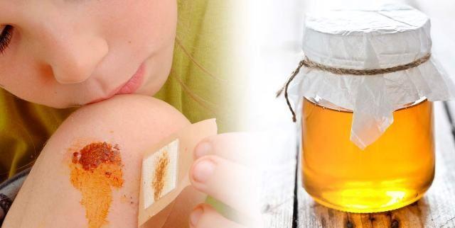 Honey Heals Burns And Wounds