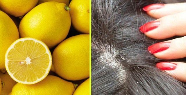 Lemon Tea for Scalp