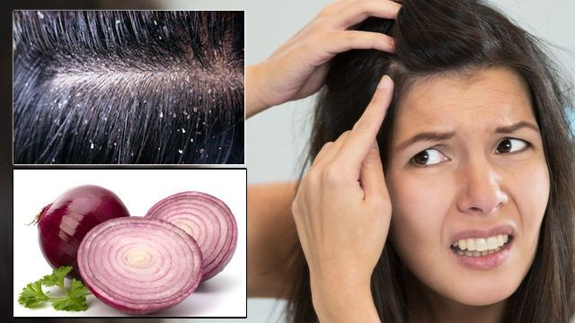 Onion For Dandruff
