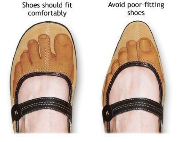 Right Footwear For Healthy Nails