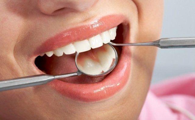 Aloe Vera Maintains Oral Health