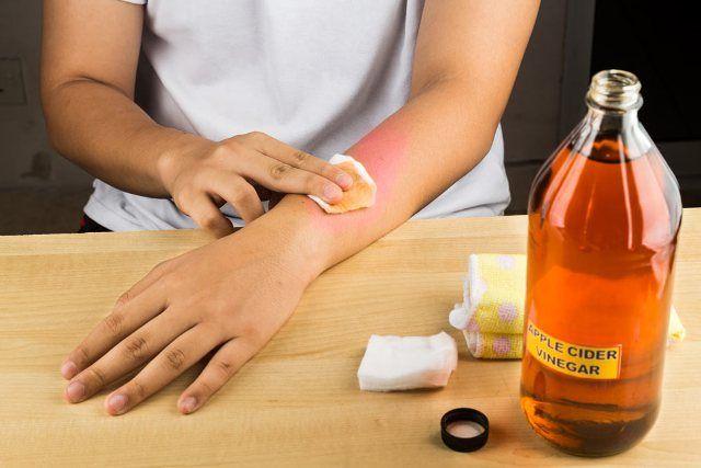 Apple Cider Vinegar Reduces Skin Rashes
