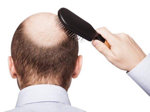 Brahmi Oil For Alopecia