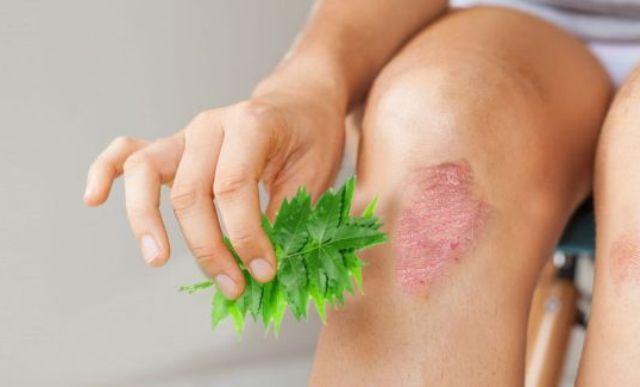 Neem Cure Eczema