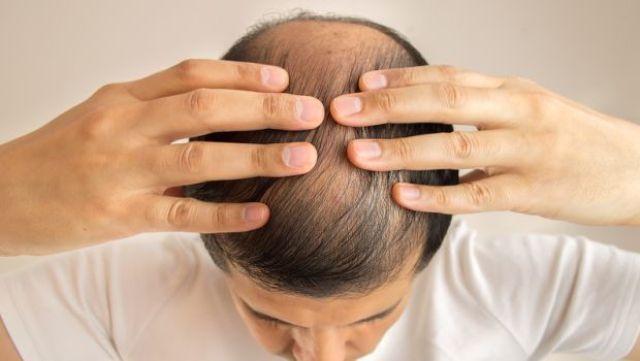 Bhringraj Controls Hair Loss