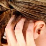 13 Natural Remedies to Cure Scalp Psoriasis